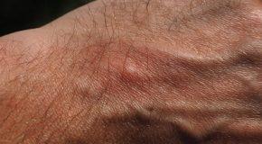 Anti moustiques : bien choisir son antimoustique
